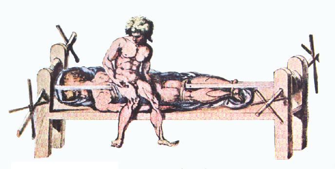 ヒポクラテスのベンチ 巻き上げる機能のついたロープで、身体を引張って背骨の歪みを治していた。